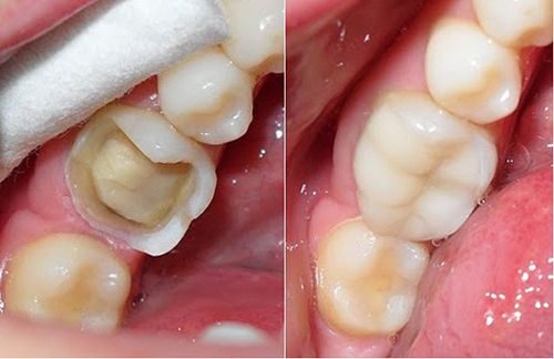 Có nên trám răng bằng Composite hay không?