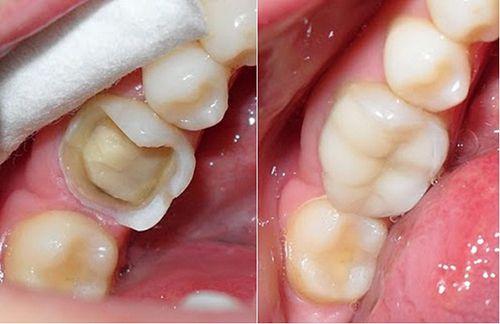 Những lưu ý quan trọng sau khi hàn trám răng