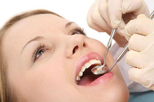 Nên lấy cao răng bao lâu một lần?