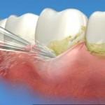 Sự khác nhau giữa tẩy trắng răng và lấy cao răng
