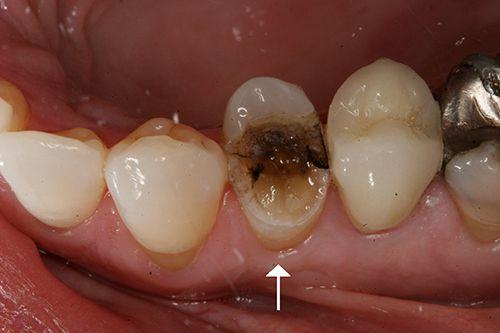 Tại sao cần trám răng phòng ngừa?