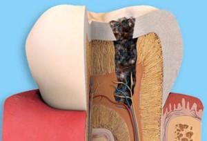 Trám răng có cần lấy tủy không?