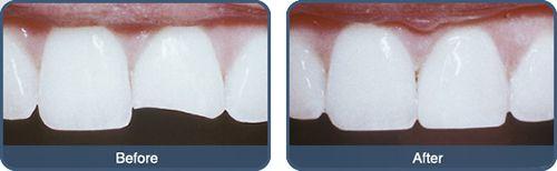 Trám răng giá bao nhiêu tiền?