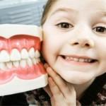 Trám răng phòng ngừa sâu răng ở trẻ em