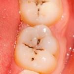 Trám răng sâu hiệu quả nhất giá bao nhiêu tiền?