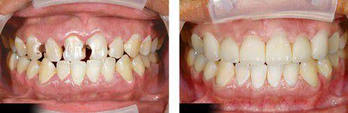 Trám răng sâu như thế nào để bền chắc?